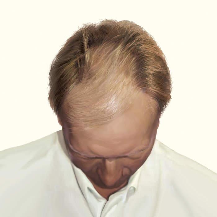 до трансплантации волос на голову