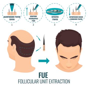 FUE метод, фуе метод пересадки волос