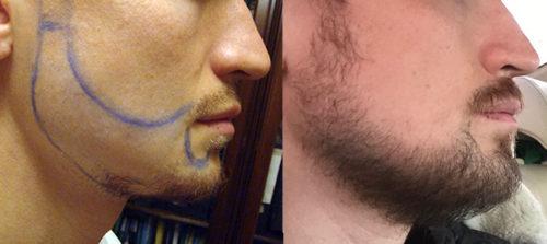 пересадка бороды, пересадка волос в область бороды