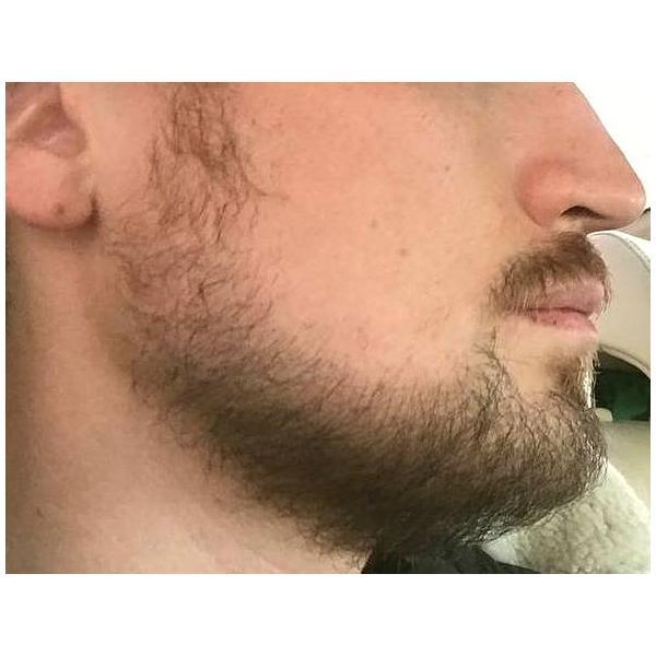 после пересадки волос на бороду