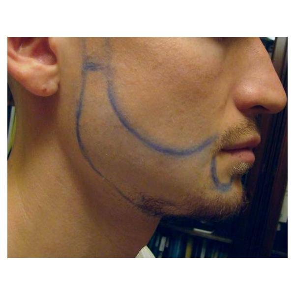 до пересадки волос на бороду