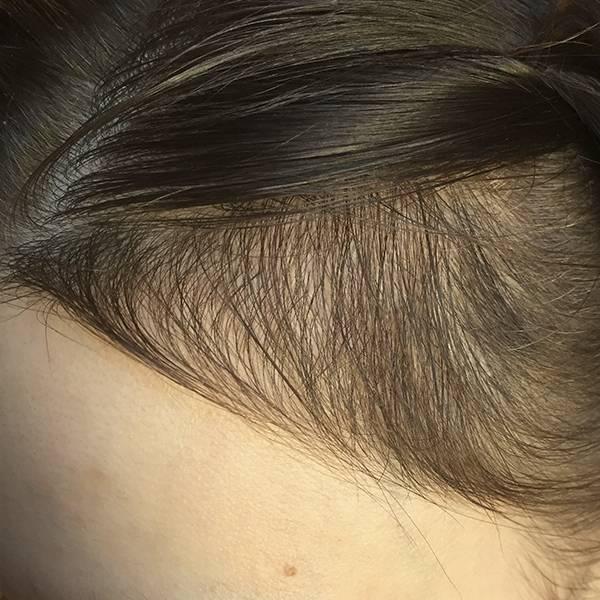 после пересадки волос на голову девушке