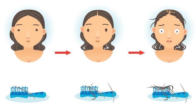 Миноксидил для роста волос — все, что вы хотели знать