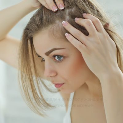 Выпадение волос у женщин, диффузное облысение