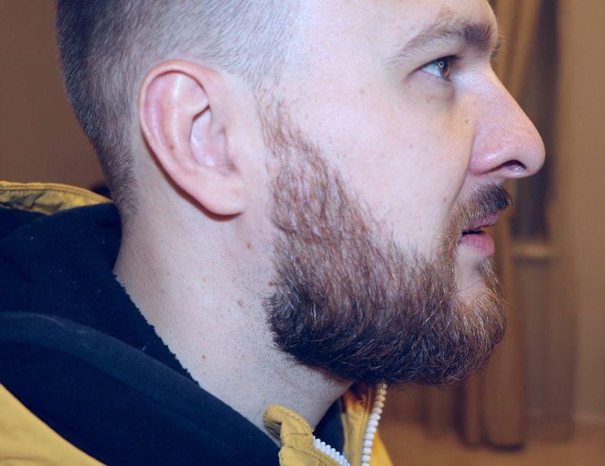 после пересадки бороды пересадки бороды