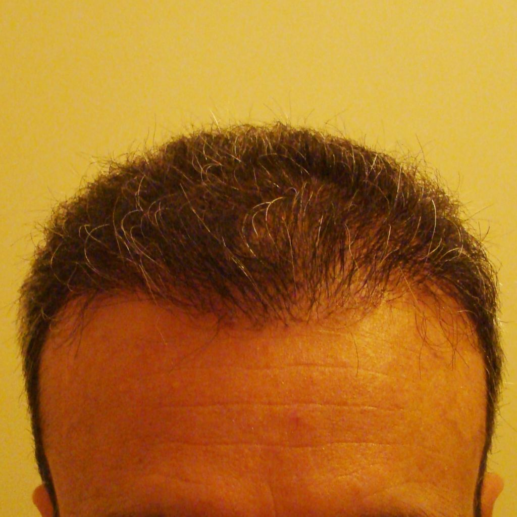 No sex day after hair transplant interesting