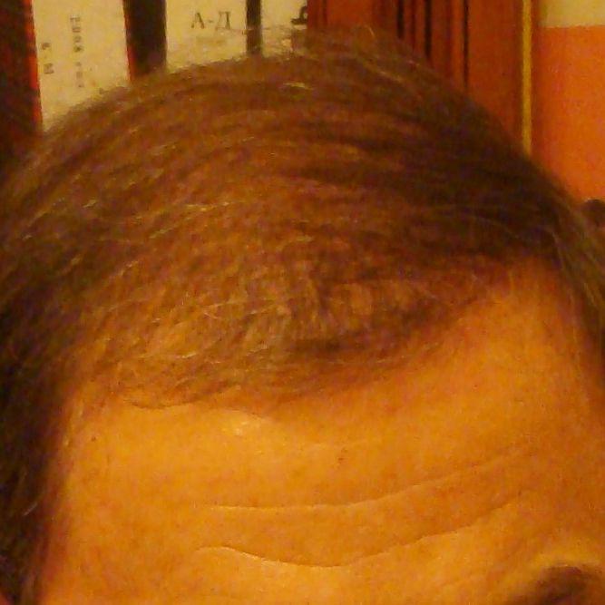 До-после пересадки волос на голову