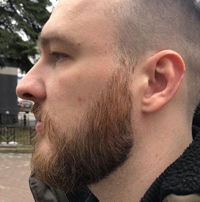 Через 8 месяцев после пересадки бороды