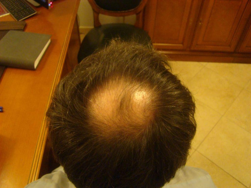 До пересадки волос на голову