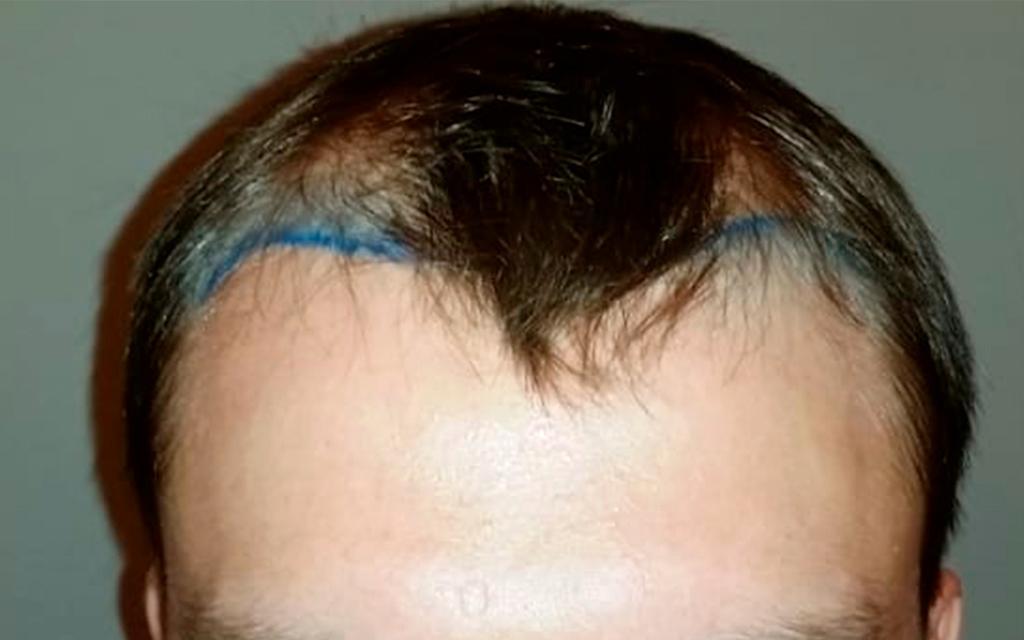До операции по пересадке волос