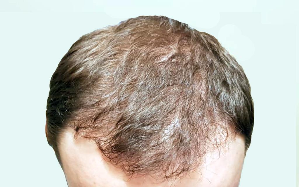 После операции по пересадке волос