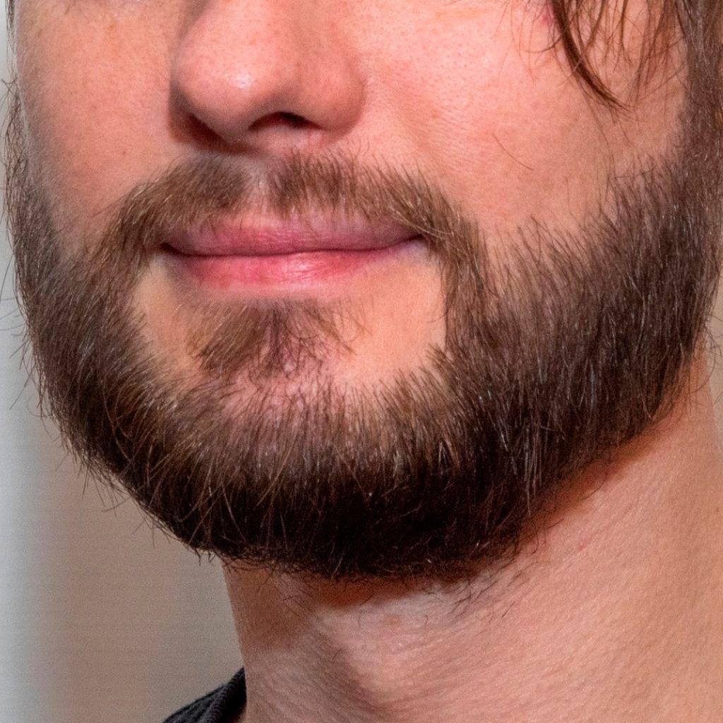 после трансплантации волос на бороду