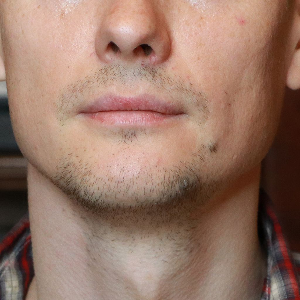 до пересадки бороды