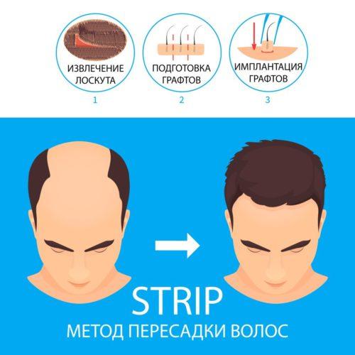 strip метод пересадки волос fut метод пересадки волос