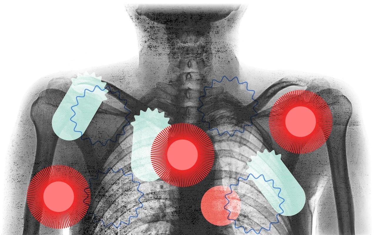 коронавирус сердце сосуды легкие кровь